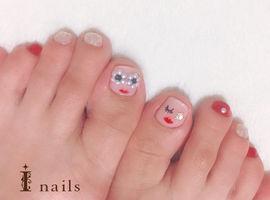 my footnail